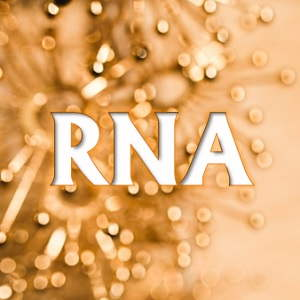Redes Neuronales Artificiales RNA
